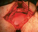 Incisional-hernia-treatment