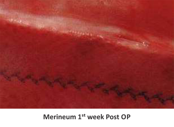 Merineum-1-week-Post-OP